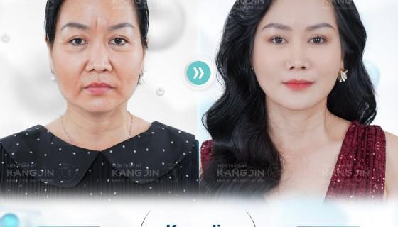 Nâng cơ mặt chảy xệ bằng công nghệ trẻ hóa da KangJin Max Collagen siêu vi điểm