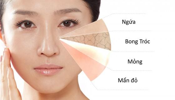 Dấu hiệu cho thấy làn da đang bị hư tổn và cần được khắc phục ngay